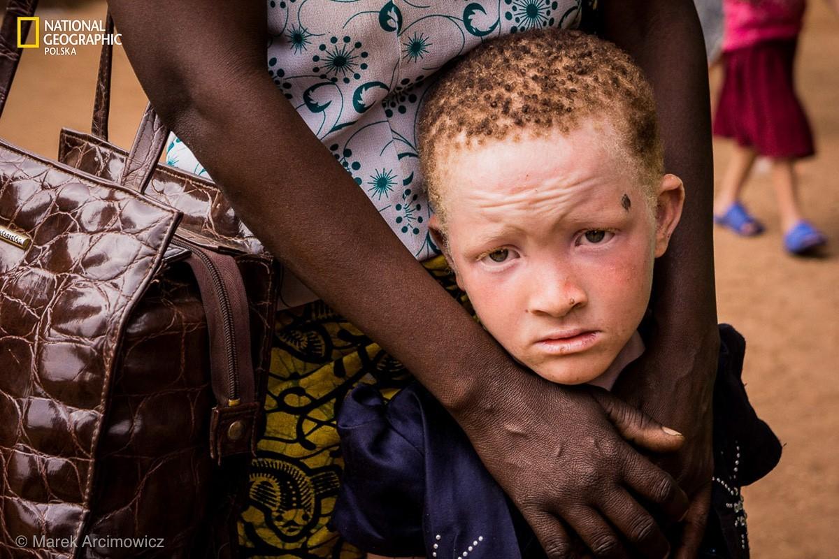 Albinosi w Tanzanii